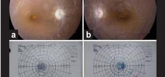 Efek samping Ethambutol sebagai salah satu pengobatan TB terhadap Mata