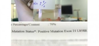 "Berkembangnya ""molecular medicine"" pada kanker paru"