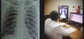 Ronsen Dada Menambah Keakuratan Diagnosis Dokter Paru